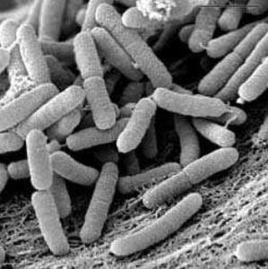 Il batterio Xylella al microscopio